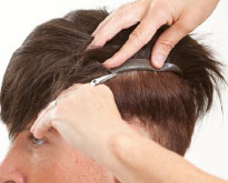 Haarsystem als Alternative zu Toupets